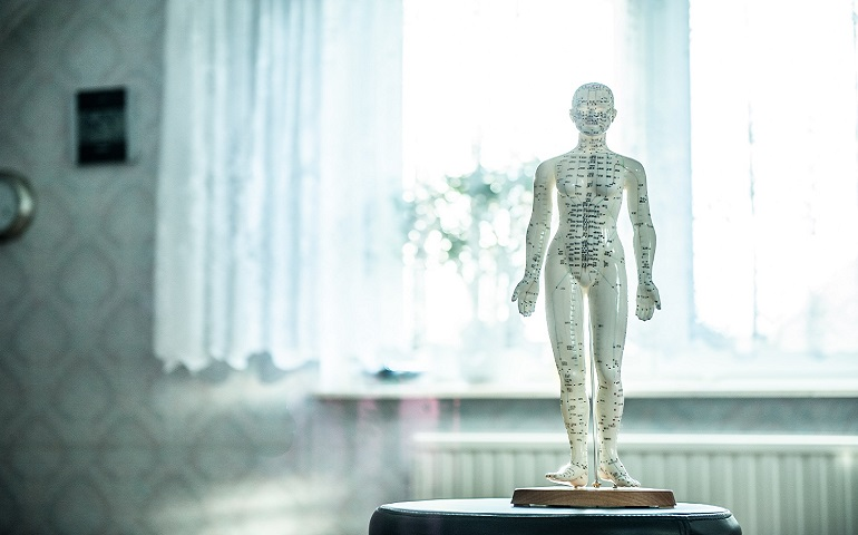 edmonton acupuncture pain management
